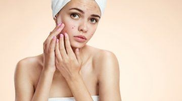 16 Unusual Causes of Acne and How to Avoid Them